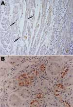 Thumbnail of Immunohistochemistry of an HPAI H5N1–infected white Cherry Valley duck (Anas platyrhynchos). The viral antigen is detected in myocardial cells and lymphoid cells (arrow) (A) and renal tubular cells (B) (magnification ×100). The primary antibody used for immunohistochemistry in this study was a mouse anti–avian influenza H5 antibody (Magellan Biotechnology, Chunan, Taiwan).