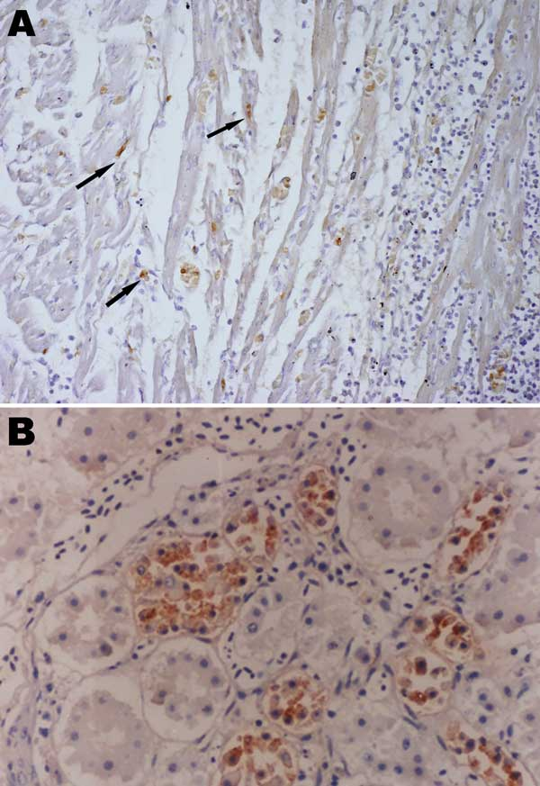 Immunohistochemistry of an HPAI H5N1–infected white Cherry Valley duck (Anas platyrhynchos). The viral antigen is detected in myocardial cells and lymphoid cells (arrow) (A) and renal tubular cells (B) (magnification ×100). The primary antibody used for immunohistochemistry in this study was a mouse anti–avian influenza H5 antibody (Magellan Biotechnology, Chunan, Taiwan).