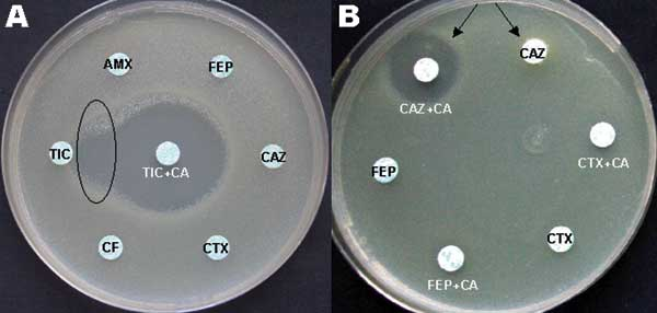 A) Oval indicates area of synergy between ticarcillin (TIC) and TIC plus clavulanic acid (CA). B) Arrows point to inhibition zone around third-generation disks with and without CA. AMX, amoxicillin; FEP, cefepime; CAZ, ceftazidime; CTX, cefotaxime; CF, cefalotin.