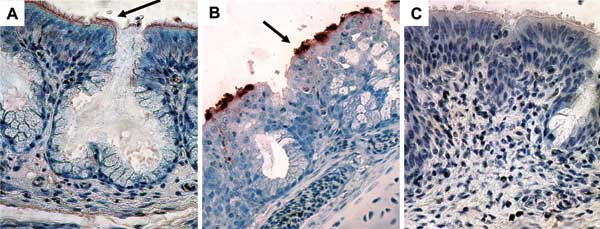 Immunohistochemical findings for nasal turbinates, showing peroxidase staining of viral antigen in the epithelial surface (magnification ×400; arrows). A) Turkey poults exposed to human metapneumovirus (hMPV B2). B) Turkey poults exposed to avian metapneumovirus (aMPV C). C) Sham-inoculated turkey poults.