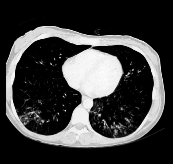 Computed tomography scan showing reticulonodular infiltrations of both lungs in the lower zones.