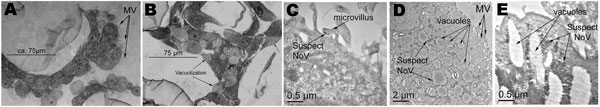 Light and transmission electron micrographs of uninfected and infected tissue aggregates with a combined stock of noroviruses representing 3 strains (Passage 0 [P0]). A) Uninfected tissue aggregates displaying well-formed microvilli. B) Infected tissue aggregates exhibiting vacuolization and shortening of the microvilli. C) Transmission electron microscopy (TEM) at 1 h postinfection showing possible norovirus in a microvillus. D) TEM at 24 h postinfection showing significant vacuolization, and i