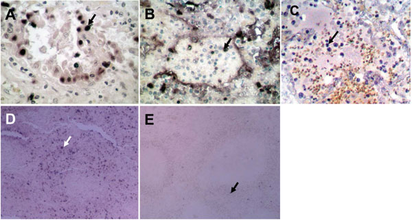 Terminal deoxynucleotidyl transferase–mediated dUTP-biotin nick end-labeling staining showing numerous apoptotic alveolar epithelial cells in lung of patient B (A) and leukocytes in lung of patient A (B). C) Lung tissue from a patient with pneumonia caused by human influenza A (H5N1) virus showing apoptosis only in leukocytes. D) Spleen of patient B showing numerous apoptotic cells. E) Normal spleen tissue showing only a minimal level of apoptosis. Apoptotic cells are stained dark blue and an apoptotic cell in each panel is indicated by an arrow. Magnification ×400 in A, B, and C; ×100 in D and E.