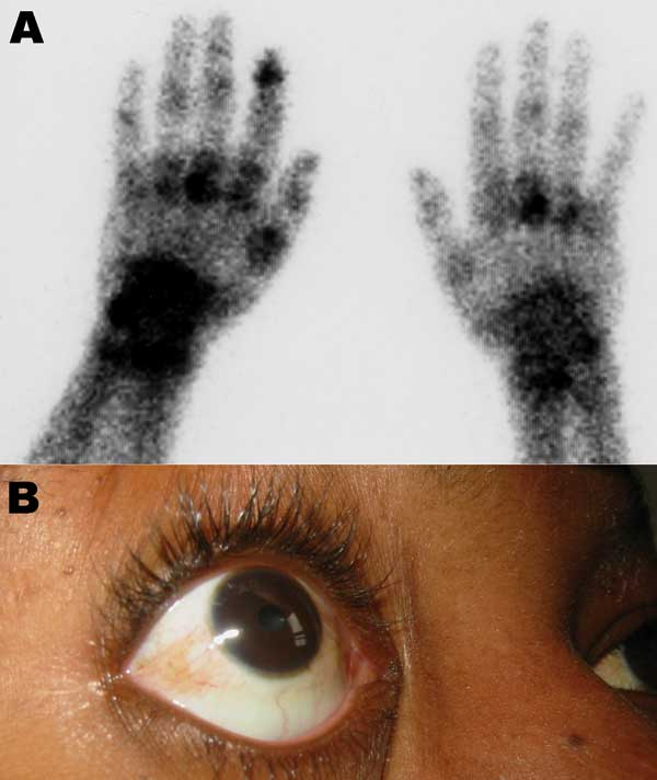 Clinical findings in patients. A) Bone scintigraphy of the wrists and hands showing an intense focus of technetium-99m–labeled methylene diphosphonate tracer uptake, particularly on the left side in the left metacarpophalangeal, wrist, and the first distal interphalangeal joints in a 73-year-old man who returned from Reunion with a severe viremic chikungunya virus (CHIKV) infection. B) Conjunctivitis in a 31-year-old woman who returned from Mayotte, French Comoros, with a severe viremic CHIKV in