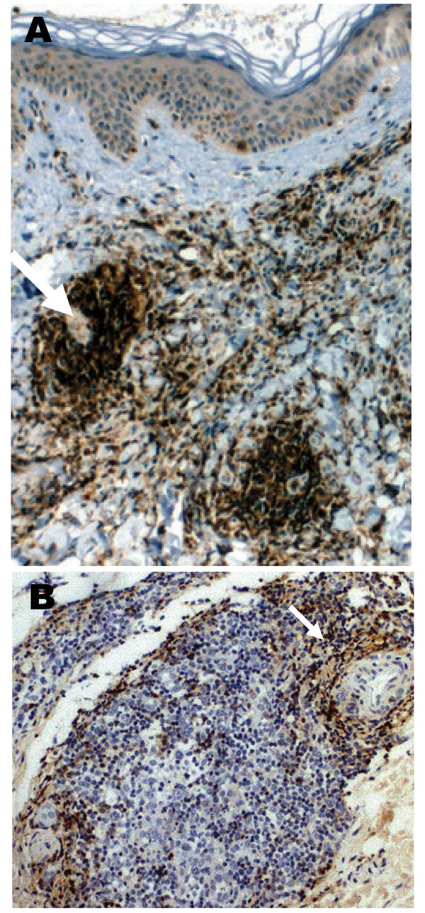 A case of lymphocytoma. A) Immunohistochemical image with anti-CD20 antibody showing a nodule with a dense B-lymphocytes infiltrate in the dermis; magnification ×100. B) Immunohistochemical image with anti-CD45 Ro antibody showing T-lymphocytes at the periphery of a nodule; magnification ×250.