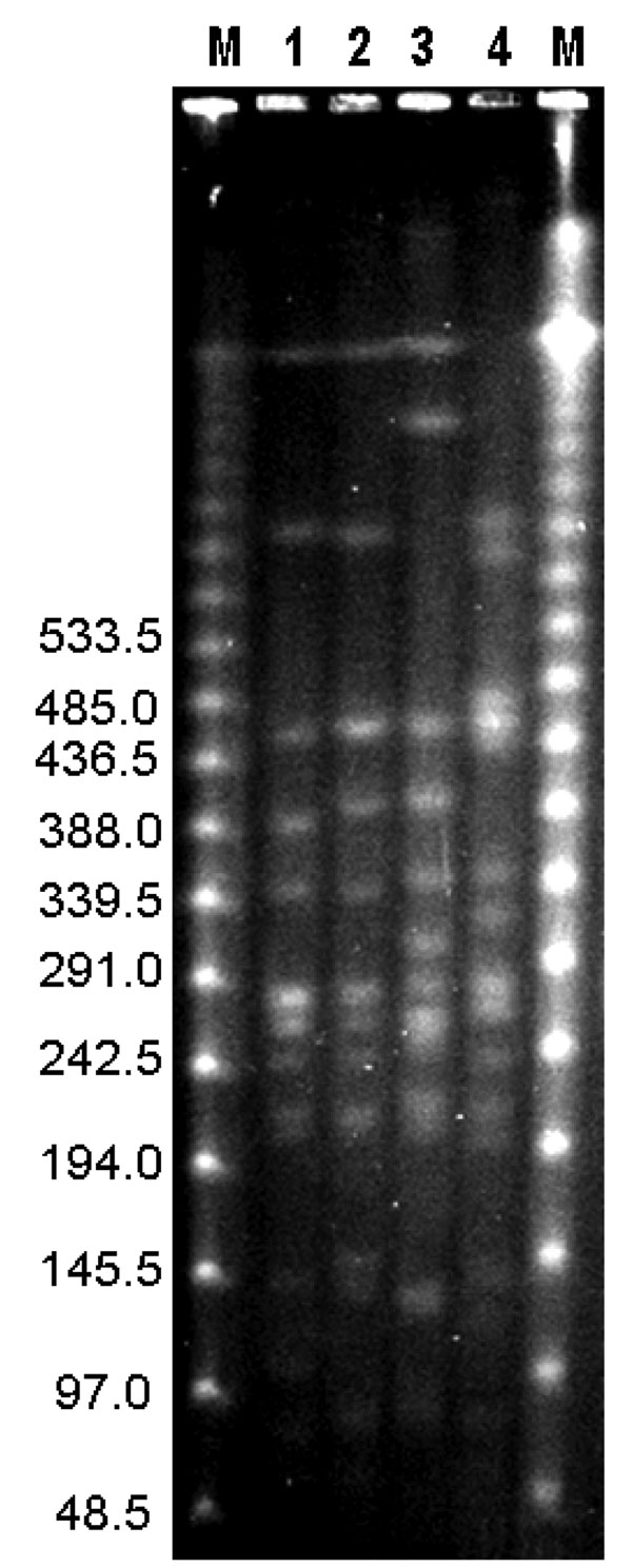 Pulsed-field gel electrophoresis of DNA from Burkholderia pseudomallei isolates digested with SpeI from patients with melioidosis in Taiwan. Lane M, bacteriophage λ DNA ladder (48.5 kb–970 kb). Lane 1, isolate from Kaohsiung County, 2005 (type A); lane 2, isolate from Tainan County, 2005 (type B); lane 3, isolate from northern Taiwan (type C); lane 4, isolate from northern Taiwan (type D). Values on the left are in kilobases.
