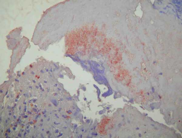 Immunohistochemical demonstration of bartonellae in the mitral valve with peroxidase-conjugated polyclonal rabbit anti–Bartonella sp. antibodies. The organisms stain dark orange against the hematoxylin counterstain; original magnification ×200.