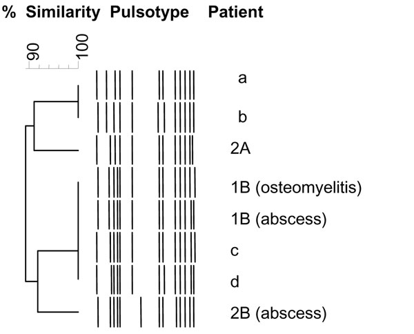 Dendogram constructed from the schematic representation of the pulsed-field gel electrophoresis types of 4 epidemic methicillin-susceptible Staphylococcus aureus (MSSA) isolates included in this study (patients 2A, 1B, and 2B); 1 strain subsequently isolated from an abscess in a soldier belonging to company A, who had been in Côte d'Ivoire in October 2005 (patient b); and 3 MSSA strains isolated from abscesses in soldiers belonging to a company other than A or B (patients a, c, d). Isolates from