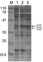 Thumbnail of Outer membrane protein (OMP) profiles of Escherichia coli strains. OMP content was determined by using sodium dodecyl sulfate–polyacrylamide gel electrophoresis. Lane 1 corresponds to E. coli CO clinical isolate; lane 2, E. coli JF 568 strain expressing OmpC; lane 3, E. coli JF 701 strain lacking OmpC (9). The molecular mass marker (M) and corresponding sizes (in kilodaltons) are indicated on the left. Horizontal arrows on the right indicate positions of the OMPs OmpF, OmpC, and Omp