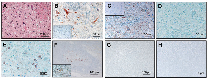 Histopathologic and immunohistochemical analyses. A) Spongiform lesions; B) partially proteinase K–resistant prion protein (PrPsc) deposits detected by immunohistochemistry (monoclonal antibodies [MAb] F99/97.6.1 diluted 1:500) in the nucleus of the solitary tract (STN) in the zebu under investigation. C–E) Comparative immunohistochemistry with MAb P4 (1:800) in the olivary nuclei of the zebu (C), a bovine spongiform encephalopathy (BSE)-positive cow (D), and a scrapie-positive sheep (E). Insets