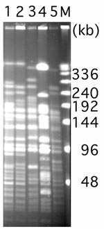 Thumbnail of Pulsed-field gel electrophoresis of ApaI restricted analysis of Acinetobacter baumannii isolates. Lane 1, A. baumannii AMA-1 from France (4); lanes 2 and 3, A. baumannii IST-1 and A. baumannii IST-2 from Turkey (4); lane 4, A. baumannii isolate from Belgium (4); and lane 5, A. baumannii MOS-1 from Russia (current study). Numbers on the right side of the figure represent the sizes in kb. M, lambda ladder.