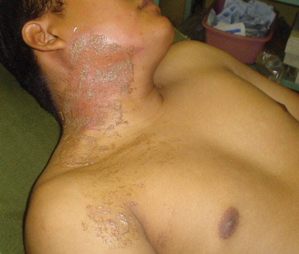"El Salvadorian infantry soldier (commando) with the characteristic rash seen after an encounter with the ""pissing beetle"" while sleeping."