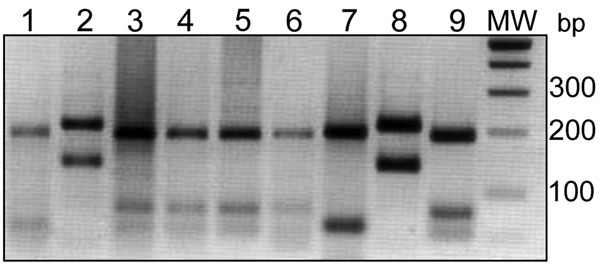 Comparison between endonuclease BsuRI digestion patterns of internal transcribed spacer 1–PCR products from clinical samples and reference Leishmania strains. Clinical samples, lanes 1–6: lane 1, Boulmane; lane 2, Ouarzazate; lanes 3–6, Sidi Kacem. Reference strains, lanes 7–9: lane 7, L. tropica (MHOM/SU/1974/SAF-K27); lane 8, L. major (MHOM/TM/1973/5ASKH); lane 9, L. infantum (MHOM/TN/1980/IPT1). MW, DNA molecular weight marker in base pairs (bp).