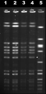Thumbnail of Pulsed-field gel electrophoresis profiles of November and February blood isolates (lanes 1 and 2), April lumbar isolate (lane 3), reference USA300-0114 isolate (lane 4), and internal control g195a (lane 5).