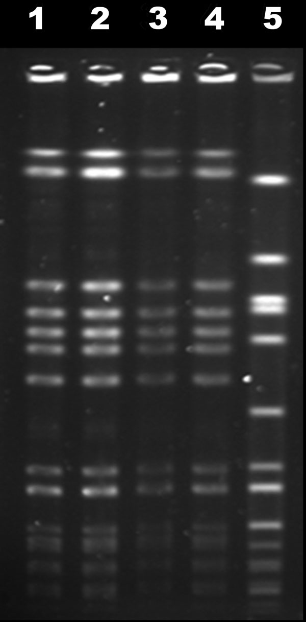 Pulsed-field gel electrophoresis profiles of November and February blood isolates (lanes 1 and 2), April lumbar isolate (lane 3), reference USA300-0114 isolate (lane 4), and internal control g195a (lane 5).