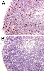 Thumbnail of Decreased apoptosis caused by overexpression of Bcl-2 protein in a mouse model of plague. Wild-type mice (A) and mice that overexpressed Bcl-2 in lymphocytes (B) were injected intranasally with Yersinia pestis. Thymuses were obtained at 72 h postinfection and stained by using the terminal deoxynucleotidyl method as a marker of apoptotic cell death. Note the decrease in apoptotic cells in the thymus of the Bcl-2 transgenic mouse (magnification ×400).
