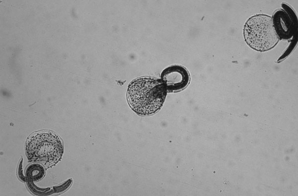 Hatched, stained, nonviable Baylisascaris procyonis larvae (magnification ×10).