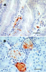 Thumbnail of Sections of chipmunk tissues 9 days after intramuscular inoculation with West Nile virus (WNV). A) Lesions were absent, but WNV antigen (brown staining) was demonstrated in scattered epithelial cells and in macrophagelike cells in the lamina propria of the small intestine. B) WNV antigen (brown staining) was demonstrated in necrotic renal tubular epithelial cells. Tissues were stained with hematoxylin, and WNV-specific mouse ascites fluid (ATCC Catalog #VR01267CAF) was used as the primary antibody for immunohistochemical staining. Scale bars = 50 μm.
