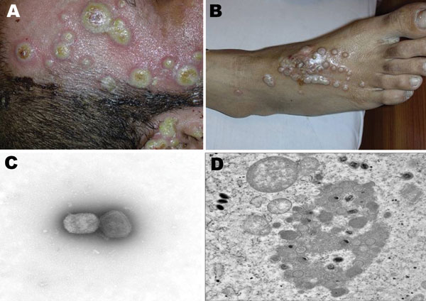 Nosocomial buffalopoxvirus infection of patients in burns units. A) Lesions involving intact skin around a burn wound and the wound itself. B) Lesions around an insertion site for an intravenous line. C) Orthopoxvirus particles detected by electron microscopy (EM) examination of negatively stained grids prepared from pustular material (magnification ×73,000). D) Transmission EM examination of ultrathin sections of infected Vero cell cultures showing classic intracytoplasmic orthopoxvirus factories and maturing virus particles (magnification ×21,000).