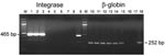Thumbnail of Semiquantitative PCR for integrase and β-globin genes using AG15 peripheral blood buffy-coat DNA. Lanes 1–7 and 10–16, serial dilutions of the DNA from 500 ng to 0.5 pg; lanes 8 and 17, negative controls; lanes 9 and 18, positive controls; M, 100-bp ladder.