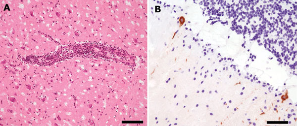 A) Moderate perivascular inflammatory infiltrates and slight diffuse infiltration of brain parenchyma by mononuclear cells in basal ganglia (hematoxylin and eosin stain, bar = 110 μm). B) Immunohistochemical findings for tickborne encephalitis virus (TBEV): strong immunolabeling of cerebellar Purkinje cell perikaryon and apical dendrites (anti-TBEV, bar = 60 μm).