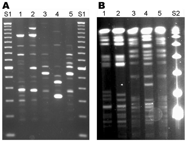 Repetitive element (Rep)–PCR (A) and pulsed-field gel electrophoresis (PFGE) (B) patterns of Mycobacterium cosmeticum isolates from 2 patients in Ohio and 1 patient in Venezuela. Rep-PCR was performed by using BOXA1R primer (3), and PFGE was performed with restriction enzyme AseI. Lanes 1, 2, Ohio isolates OH1 and OH2; lanes 3, 4, control strains ATCC BAA-878T and ATCC BAA-879; lane 5, Venezuelan isolate VZ1. DNA size standards are 100-bp (S1) and 48.5-kb marker (S2).