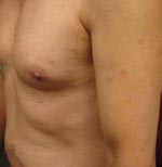 Thumbnail of Multiple papules on torso, upper arms, and legs.