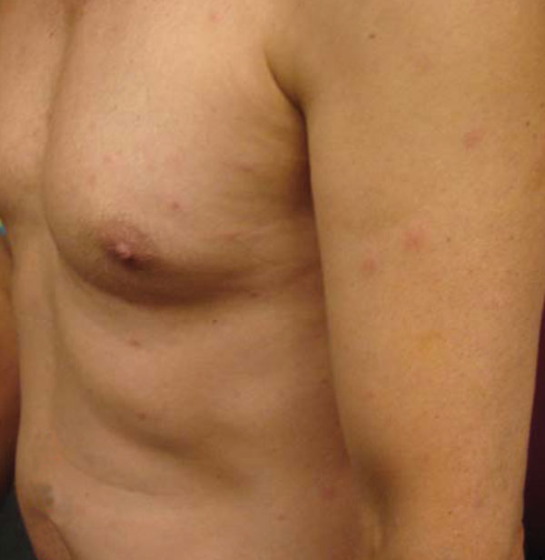 Multiple papules on torso, upper arms, and legs.
