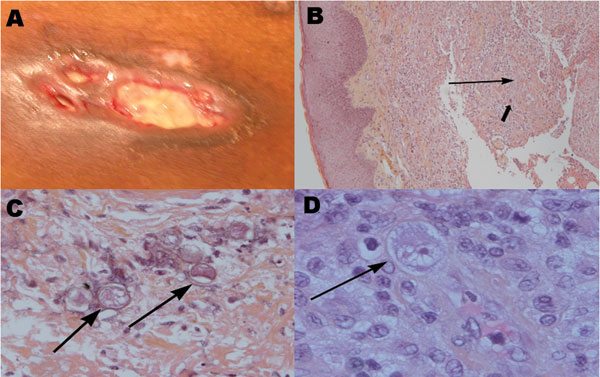A) Ulcerated, violaceous plaque on the trunk of the patient with undermined infiltrated peripheral walls. B) Section of the lesion in A showing diffuse dermal-hypodermal necrosis with neutrophil infiltration (thin arrow) and sparse histiocytelike cells (thick arrow) (hematoxylin and eosin–stained, magnification ×10). C) Surgical skin biopsy specimen showing amebic cysts (arrows) in the dermal-hypodermal junction (hematoxylin and eosin–stained, magnification ×20). D) Surgical skin biopsy specimen showing intravascular amebic trophozoite (arrow) characterized by acanthopodia, cytoplasmic vacuoles, and a prominent nucleolus (hematoxylin and eosin–stained, magnification ×40).