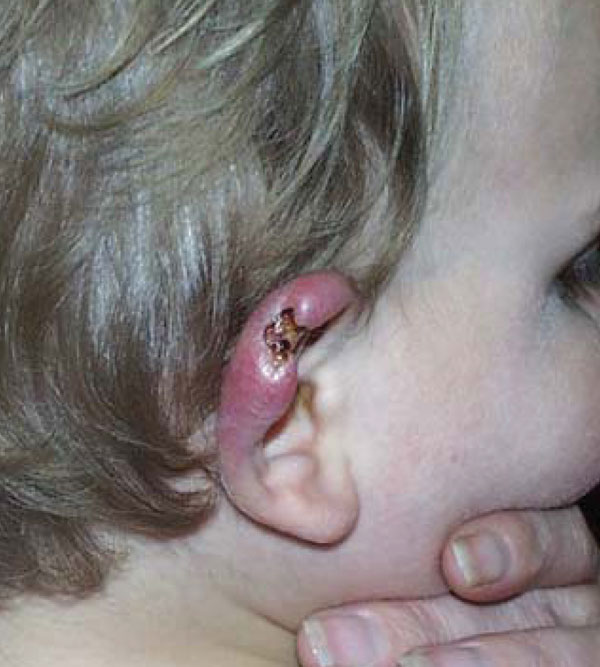 Ear of an 18-month-old child with culture- and PCR-confirmed Buruli ulcer who briefly visited St. Leonards, Australia, in 2001 (Figure 2). The initial lesion resembled a mosquito bite or that of another insect.