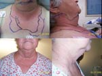 Thumbnail of Top, anterior and lateral views of patient on day 1 of receiving antimicrobial drugs, demonstrating neck erythema and edema. Bottom, anterior and lateral views of patient on day 8 of receiving antimicrobial drugs, demonstrating resolution of neck erythema and edema.