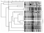 Thumbnail of Pulsed-field gel electrophoresis (PFGE) banding patterns of chromosomal DNA of 26 isolates of vancomycin-resistant enterococci. There is a clear predominant type, classified as type A (≥80% similarity), composed of 18 isolates of Enterococcus faecium. There are at least 3 subtypes that display a 100% similarity.