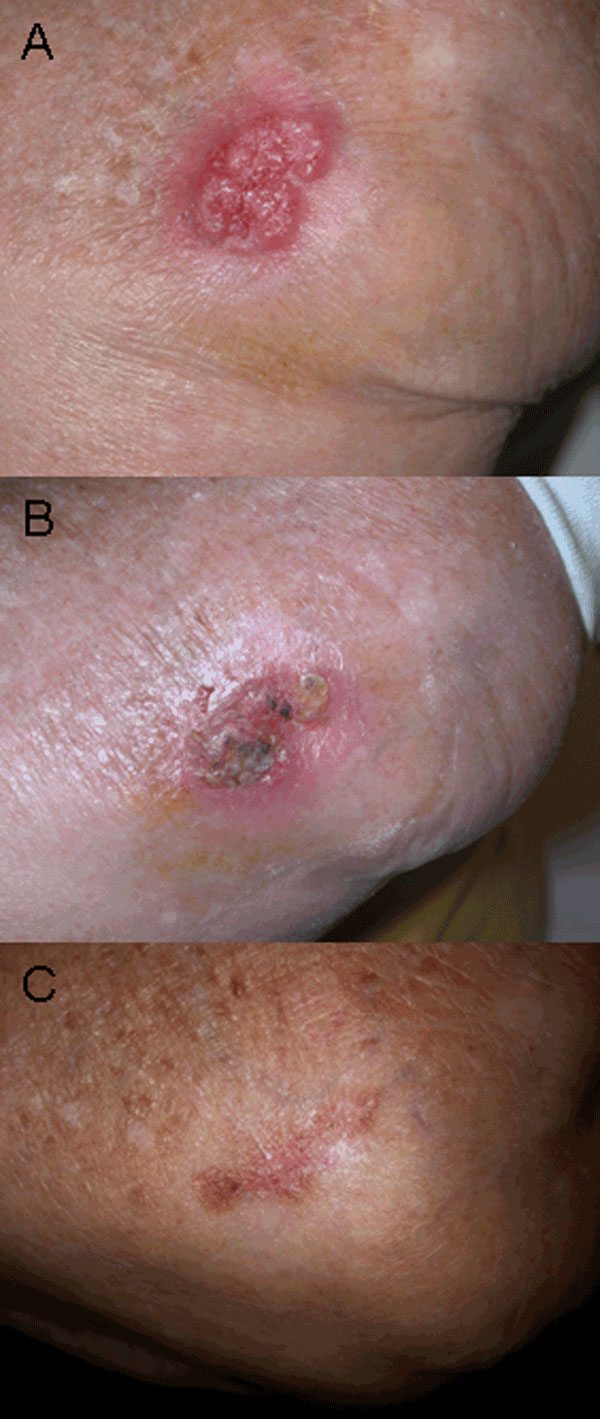 A) Irregular, erythematous, painful ulcerated plaque of the external side of the left elbow of the patient before treatment. B) Eight weeks after beginning treatment. C) Twenty weeks after beginning treatment.