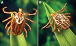 Thumbnail of Adult Amblyomma maculatum (the Gulf Coast tick). A) Female; B) Male. Photographs courtesy of James Gathany, Centers for Disease Control and Prevention