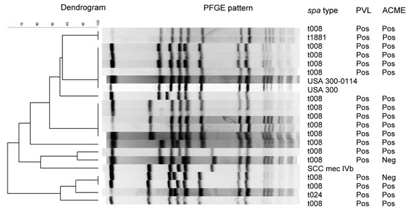 Pulsed-field gel electrophoresis (PFGE) of a stratified random sample of USA300 isolates and corresponding PCR results for Panton-Valentine leukocidin (PVL) and arginine catabolic mobile element (ACME). The Centers for Disease Control and Prevention's PFGE results for USA300, USA300-0114, and SCCmec IVb were added as controls.