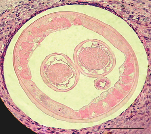 Transverse section of a female worm and surrounding tissue isolated from the patient (hematoxylin and eosin stained). Scale bar = 100 μm.