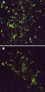 Thumbnail of Intracytoplasmic virus-specific fluorescence in brain tissues of an 11-day-old Mongolian gerbil (A) and a 10-day-old NIH Swiss mouse (B) injected intracerebrally with 6,000 PFU of Thottapalayam virus (TPMV) strain VRC-66412 from serum of an adult rat injected intramuscularly with TPMV (original magnification, x400).