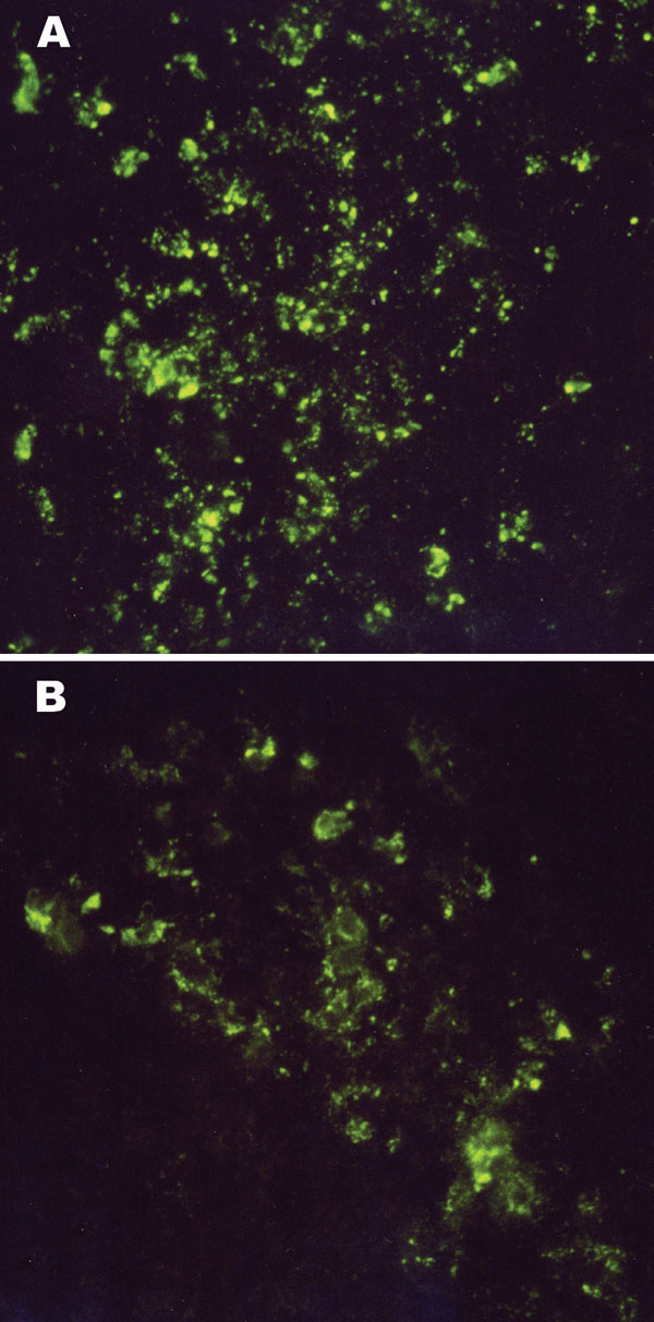 Intracytoplasmic virus-specific fluorescence in brain tissues of an 11-day-old Mongolian gerbil (A) and a 10-day-old NIH Swiss mouse (B) injected intracerebrally with 6,000 PFU of Thottapalayam virus (TPMV) strain VRC-66412 from serum of an adult rat injected intramuscularly with TPMV (original magnification, x400).