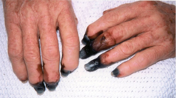 Digital gangrene in a patient (case 2) with Rickettsia australis infection.