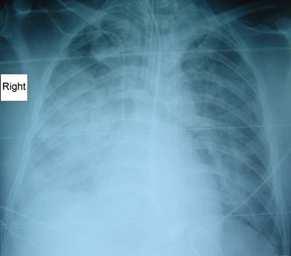Radiograph showing pneumonia in a patient (case 3) with Rickettsia australis infection.