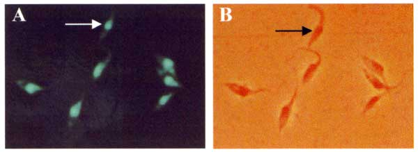 In situ hybridization of Rhodnius pictipes-derived flagellates with an archetypic Berenice Trypanosoma cruzi-specific probe. The byotinylated 198-bp sequence amplified with Tcz1/2 nuclear DNA probe (37) was revealed with fluorescein-conjugated streptavidin. This genotypic marker, representing 12.5% of total parasitic nuclear DNA, also confirms this sylvatic isolate as T. cruzi.