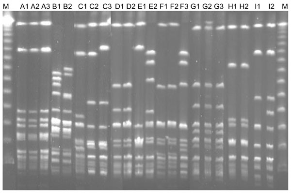 Pulsed-field gel electrophoresis profiles of all isolates from patients with recurrent group G streptococcal bacteremia. Isolates B1 and B2, Streptococcus canis; other isolates, S. dysgalactiae subsp. equisimilis (see designation of the isolates in Table 2). Lane M, molecular mass marker.