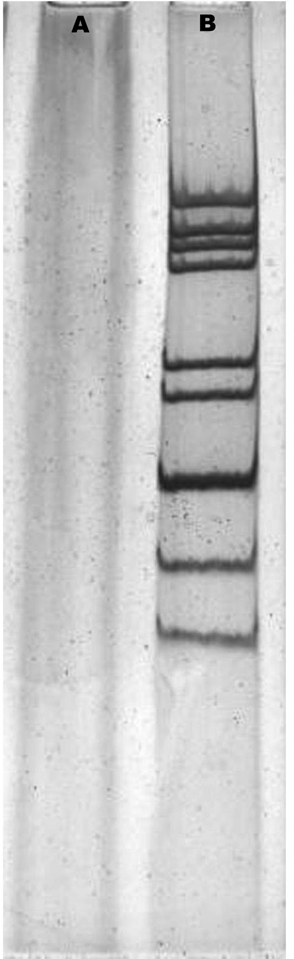 Polyacrylamide gel electrophoresis of rotavirus RNA. The viral RNAs were analyzed by electrophoresis in a polyacrylamide gel and visualized by silver staining. A, negative control; B, Wuhan G9 strain (CC589).