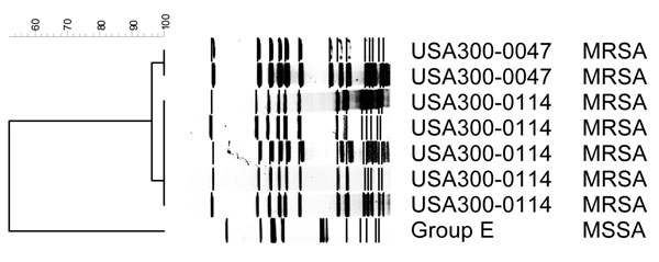 Dendrogram of pulsed-field types for methicillin-resistant Staphylococcus aureus (MRSA) and methicillin-susceptible S. aureus (MSSA) isolated from methamphetamine users.