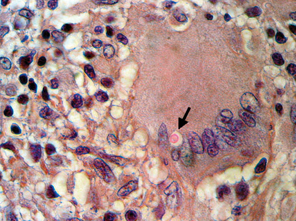 Histiocytic granuloma with lymphocytes and multinucleated giant cells and an encapsulated intracytoplasmic mucicarmine-positive structure identified as a Cryptococcus sp. (arrow) (hematoxylin and eosin– and Mayer mucicarmine–stained, magnification 400×).