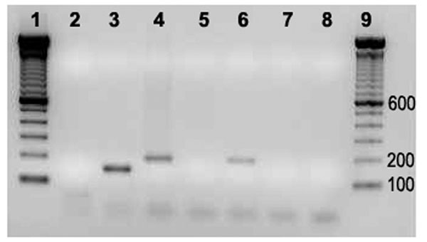 PCR amplification of internal transcribed spacer 16S–23S on vegative and normal-appearing valves of cows 04–927 and 05–1406. 1, Molecular weight marker; 2, negative control; 3, Bartonella quintana; 4, B. bovis; 5 and 6, normal appearing and vegetative valves (Cow 04–927); 7 and 8, normal appearing and vegetative valves (Cow 05–1406); 9, molecular weight marker.