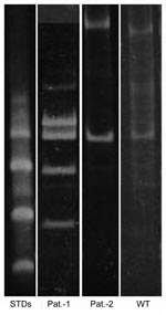Thumbnail of Polyacrylamide gel electrophoresis–restriction fragment length polymorphism of PCR amplicons digested with HaeIII with standards. STDs, sexually transmitted diseases; Pat., patient; WT, wild type.