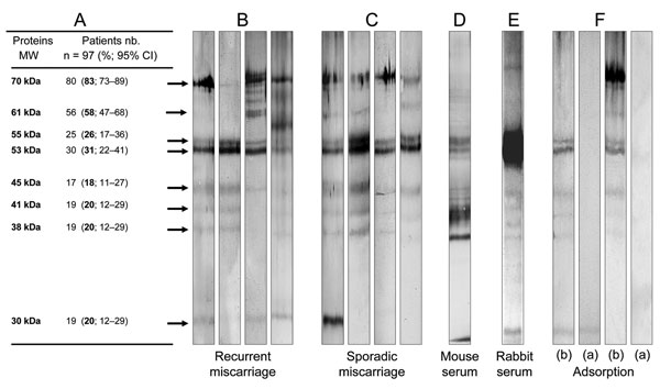 Western blot analyses. A) Molecular weight and frequency of IgG reactivity of Waddlia proteins, as determined by Western blots. B) and C) Four representative Western blot patterns of Waddlia IgG positive sera from recurrent and sporadic miscarriage groups. D) and E) Representative Western blot pattern of positive control (Waddlia hyper-immune mouse and rabbit serum, respectively). F) Western blot performed with Waddlia IgG positive sera, taken from patients who had miscarried before (b) and after (a) adsorption with Waddlia antigen. MW, molecular weight; nb, number.
