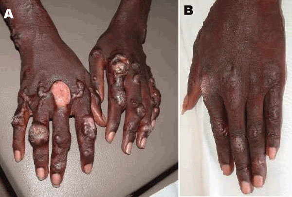 Infiltrated lesions on the patient's hands A) before and B) 70 days after treatment began.
