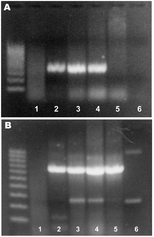 Agarose gel electrophoresis of PCR products from Rhinosporidium seeberi–specific primers (A) and β-actin primers (B). The left lane contains a 100-bp ladder. Samples 1–4, from horses with histologic diagnoses of rhinosporidiosis; sample 5, from the skin of a noninfected horse; sample 6, negative control (water).
